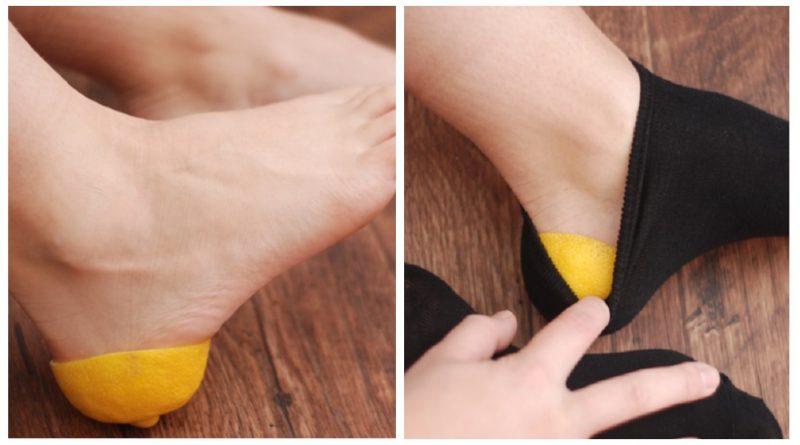 Topuk dikenine doğal tedavi yöntemleri
